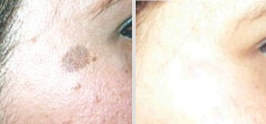toronto brown spot removal